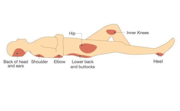 Medicazione di Ulcere e Decubiti - assistenza infermieristica domiciliare