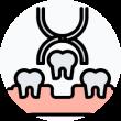 estrazione dentale a domicilio