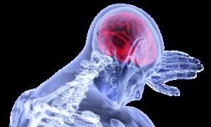 Neurologo a Domicilio Brescia