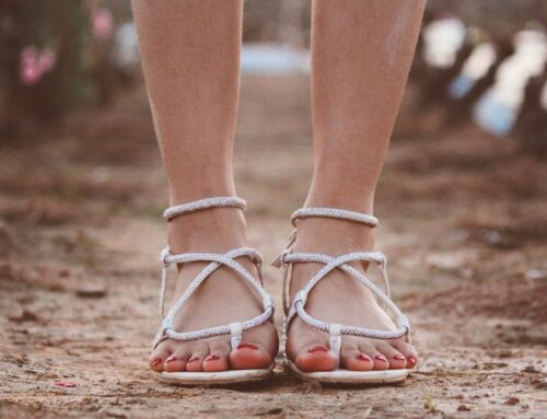 Sandal Season is Coming Back, but What to Do about Cracked Heels?