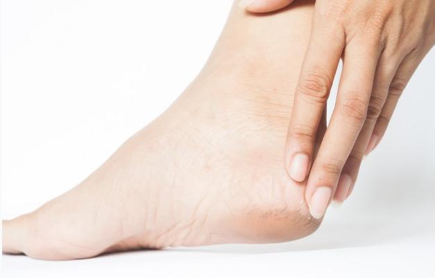 foot xerosis chiropodist podiatrist