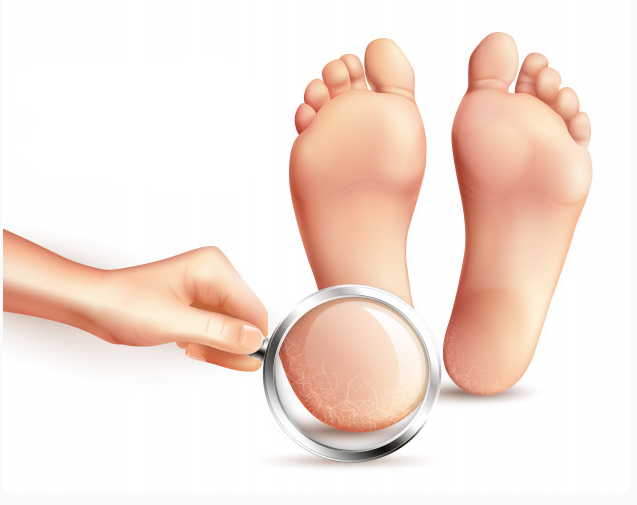 causes for dry cracked heels